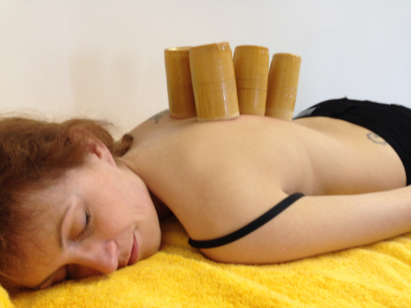 Gua Sha - Cupping is a TCM therapy commonly used with or instead of acupuncture.