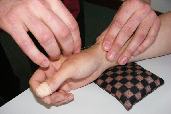 Needling technique for Lieque Lu7.